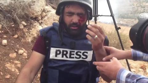1605463356 9549106 854 481 4 2 - عام على فقء عين معاذ.. إسرائيل تواصل استهداف الصحافيين