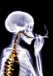 Smokingskeleton