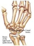 wrist pain bone diagram