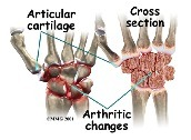 wrist bone diagram