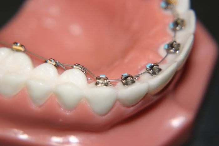 Курс к ровным зубам: когда и как ставят брекеты детям? Когда ставить брекеты