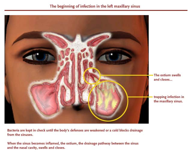 Sinus Infection Symptoms – Can Your Toothache Be A Sinus ...