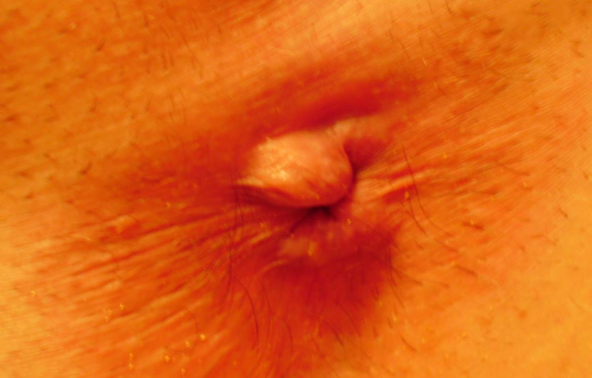 Outside Hemorrhoid Pictures Symptoms And Pictures