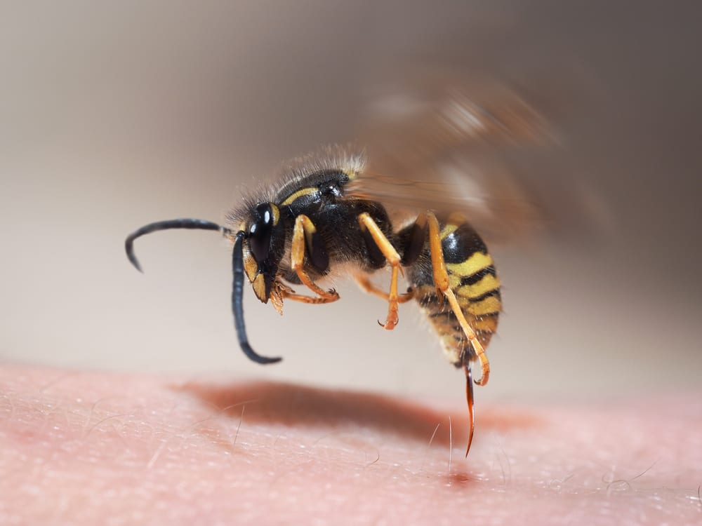 Wasp,Sting,Pulls,Out,Of,Human,Skin.,Macro