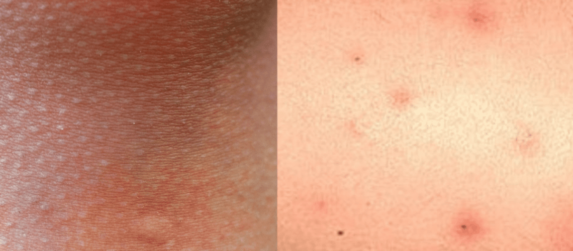 Bed-Bug-Bites-vs-Mosquito-Bites