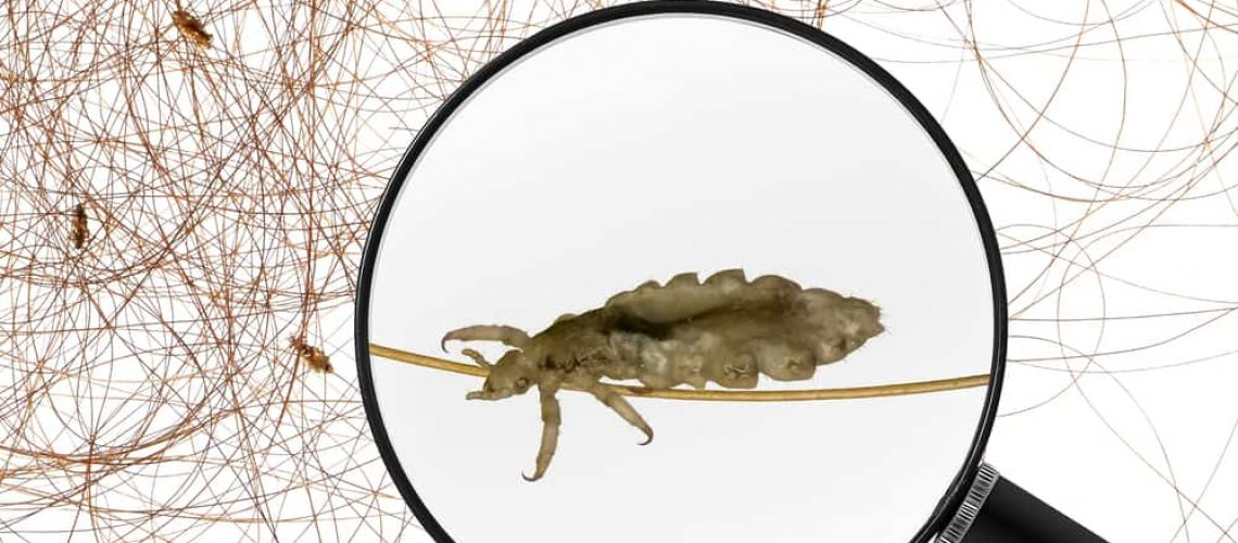 Head,Lice,(louse),-,View,Through,A,Magnifying,Glass,And