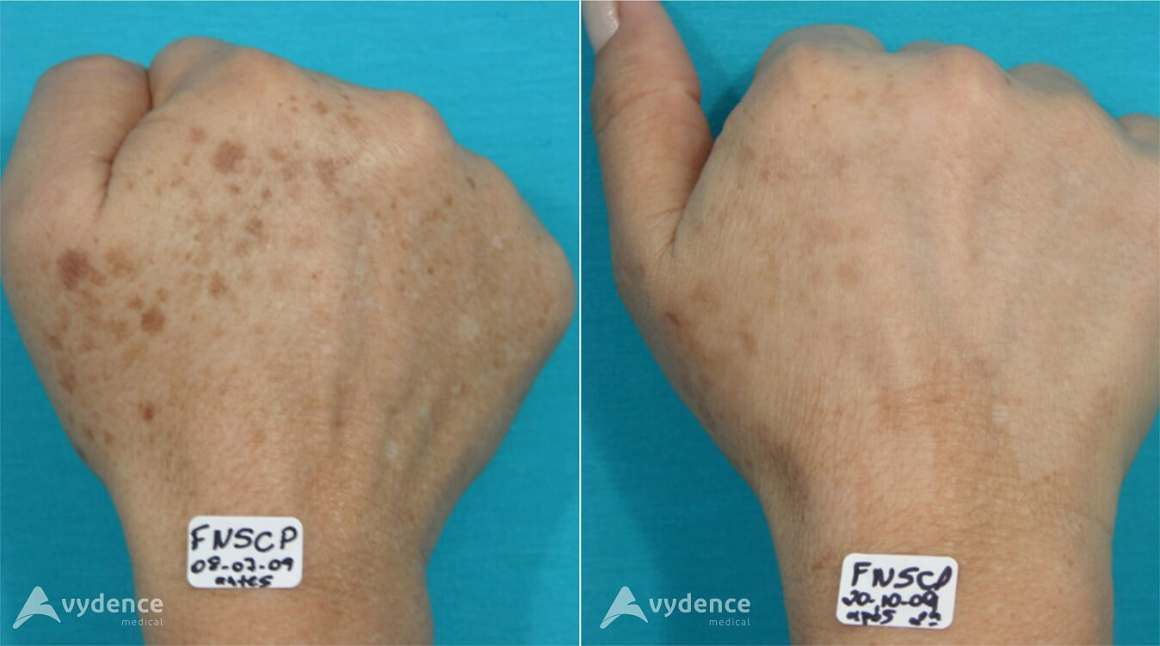 Pigmentation Before and After