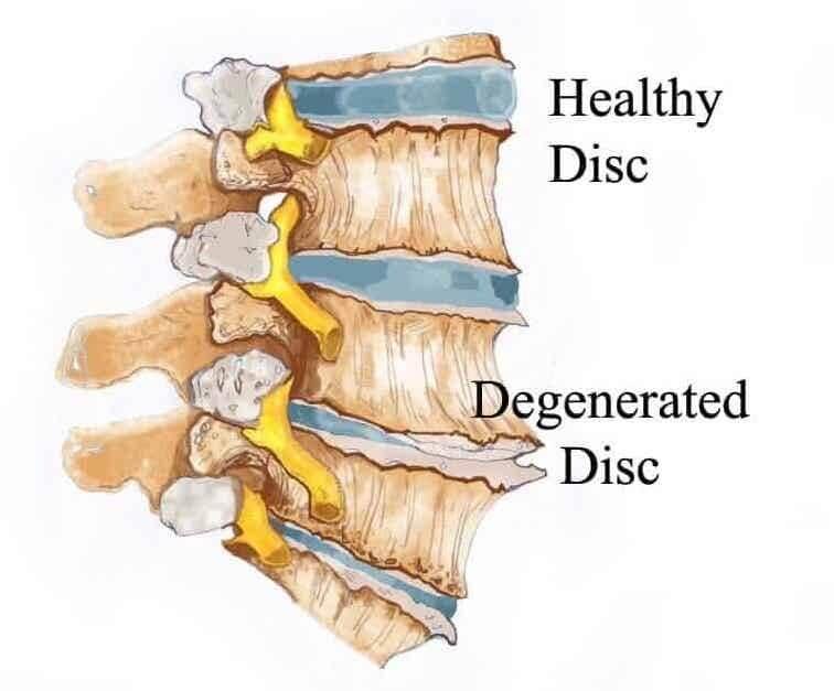 Degenerative Disc Disease Naperville