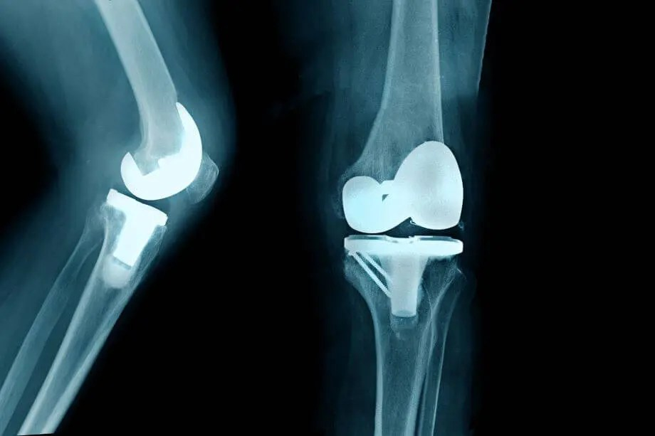Failed Knee replacement naperville