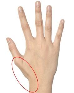 腱鞘炎親指側