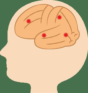 ガッテンの脳梗塞や心筋梗塞対策!血液中の血栓の予防法は?