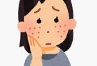 過食嘔吐で顔にむくみが?唾液腺が腫れる?原因や治療法は?