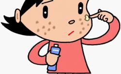 帯状疱疹の原因は?20~30代はストレスやお酒・食事?