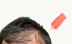 頭皮の脂漏性皮膚炎は薬で完治する?おすすめシャンプー!