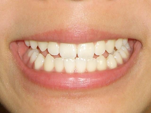 差し歯の土台と治療期間や寿命!インプラントやブリッジとの違いは?