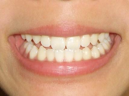 歯槽膿漏の治療法や期間・費用!効果的な薬や歯磨き粉は?