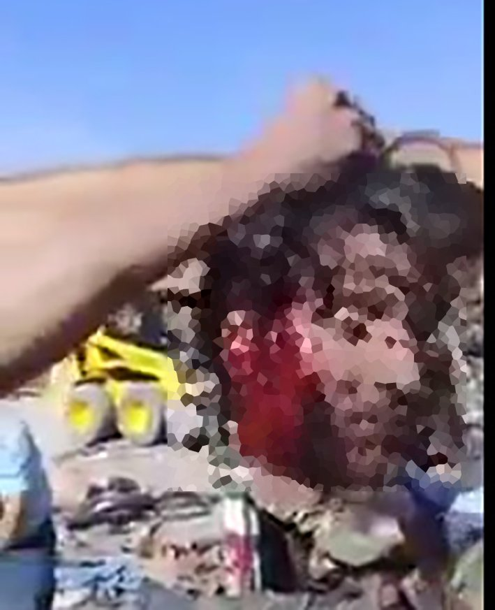 The severed head of Syrian soldier proudly held for camera by White Helmets humanitarian. Daraa