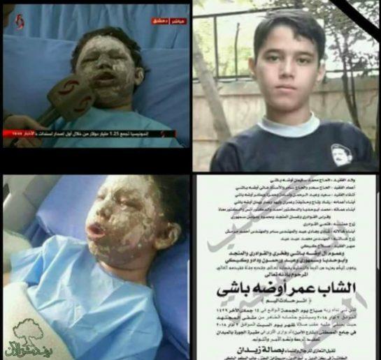 jaish-al-islam terrorists did this.