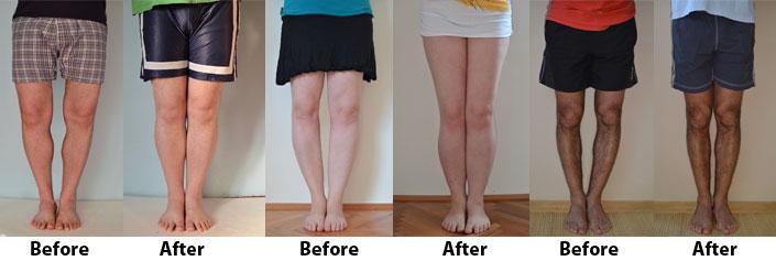 bow legged benefits