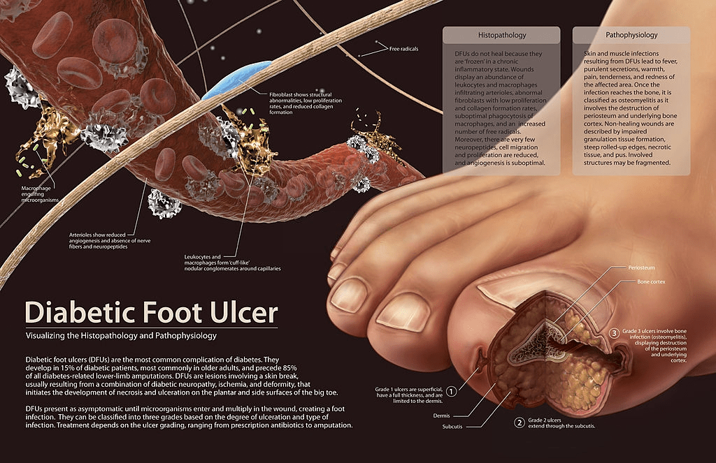 What Are The Causes And Pathogenesis Of Diabetes Foot Ulcers?