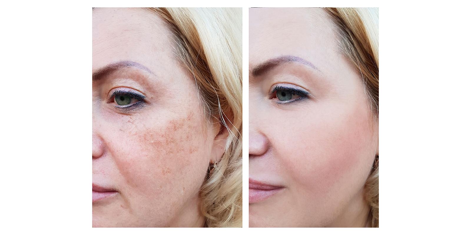 NuGlow RGB Light Therapy Skincare
