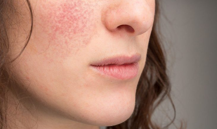 Best Way To Cure Perioral Dermatitis - Is It A Fungal Infection?