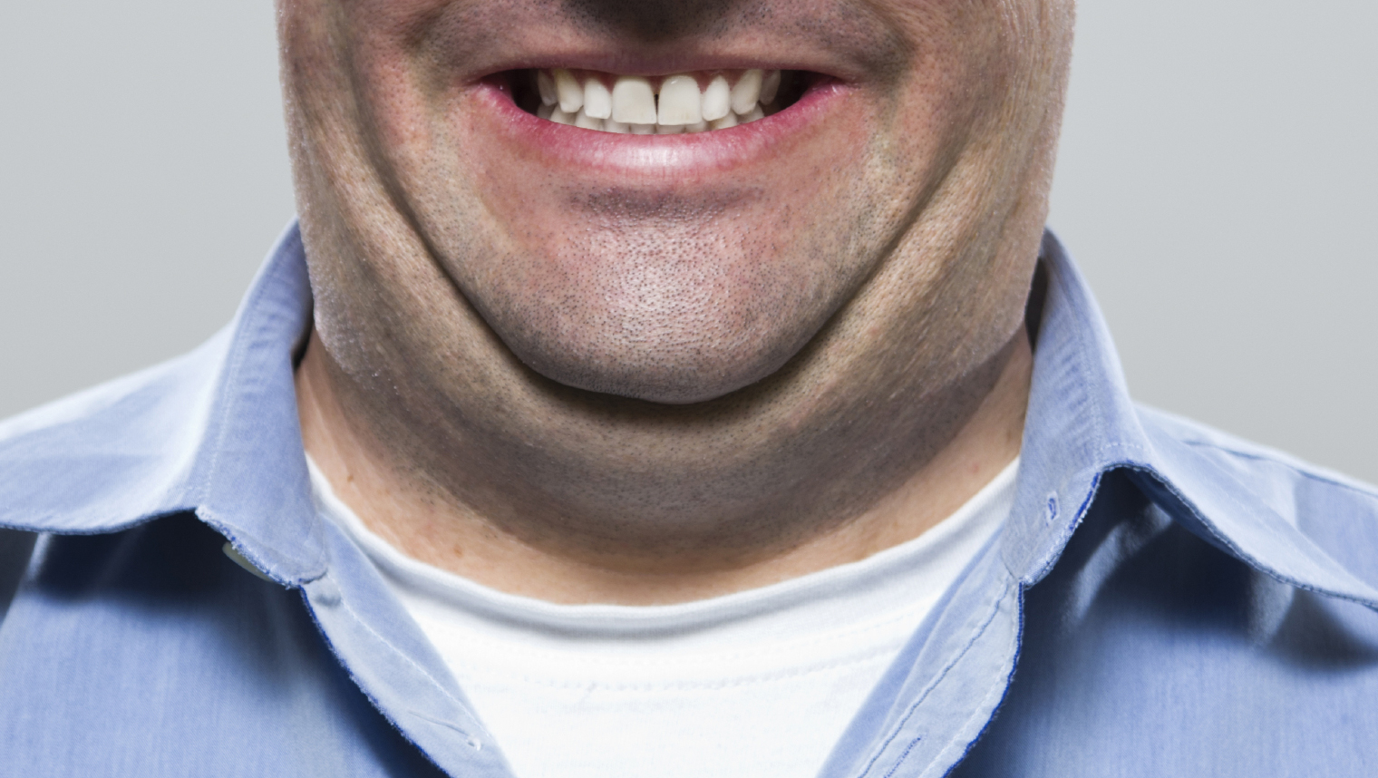 Is It Possible To Lose Your Double Chin By Diet?