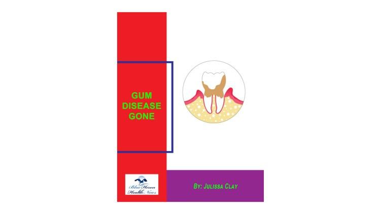 Gum Disease Gone Reviews