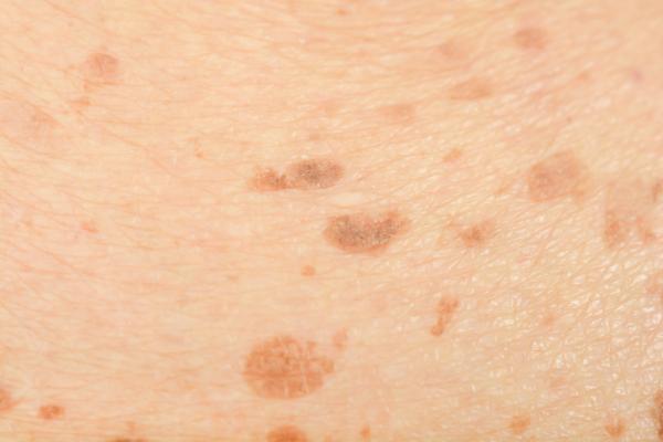 أسباب وعلاج البقع البنية على الجلد عشتار