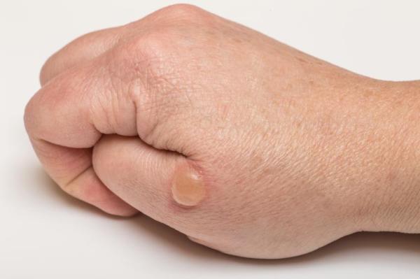 Bolhas de água na pele: causas e como curá-las - RÁPIDO E SEM MARCAS!