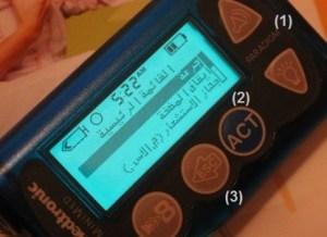 14 300x218 - مضخة الانسولين