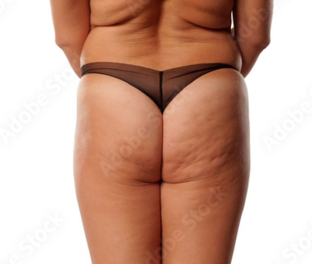 Fat Ass Woman With Cellulite