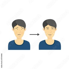 Acne Face Diagram Five Senses Black Hair Male From To Clean Without Infographic Illustration