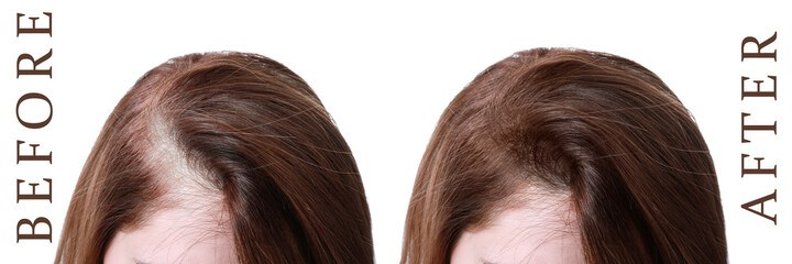 Woman before and after Onion Juice and Tea Tree Oil for Hair Loss