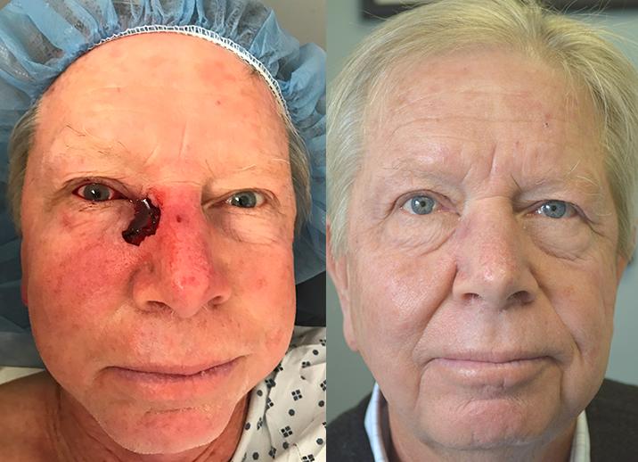 Eyelid Skin Cancer | Taban MD oculoplastic cosmetic eyelid plastic surgeon Beverly Hills. Los Angeles. Santa Barbara