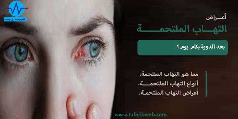 اعراض التهاب الملتحمة بالتفصيل