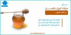 علاج حرقة البول بالعسل