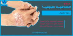 علاج الصدفية طبيعيا