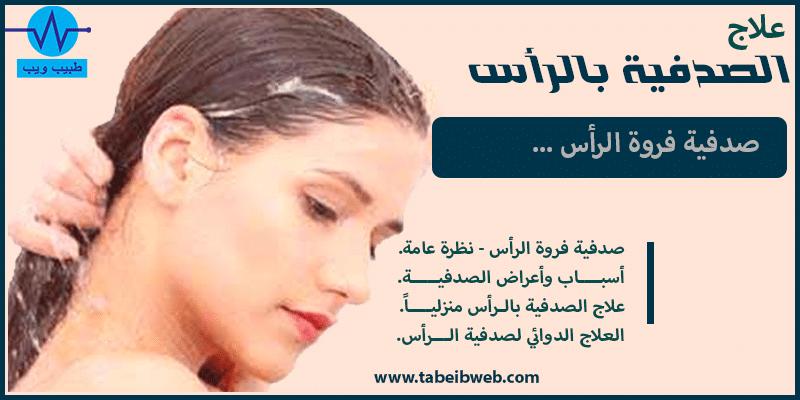 علاج الصدفية بالراس (صدفية فروة الرأس)