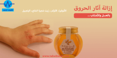 إزالة آثار الحروق بالعسل والاعشاب