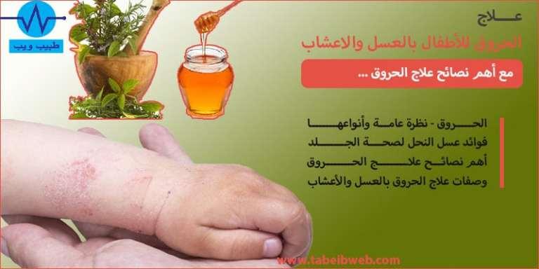 علاج الحروق للأطفال بالعسل والاعشاب