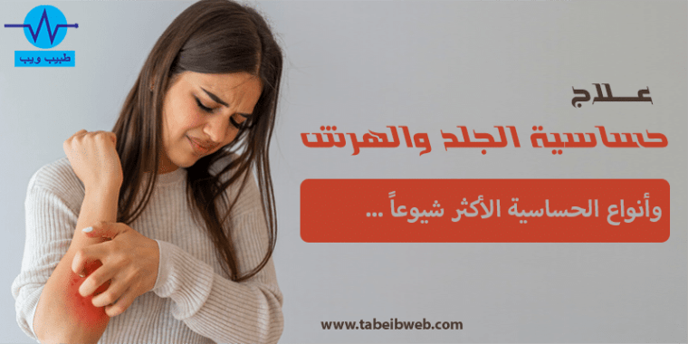 علاج حساسية الجلد والهرش