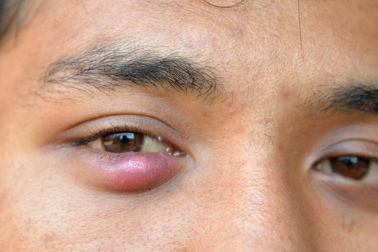 أسباب ظهور الكيس الدهني في العين وعلاجه طبيبي