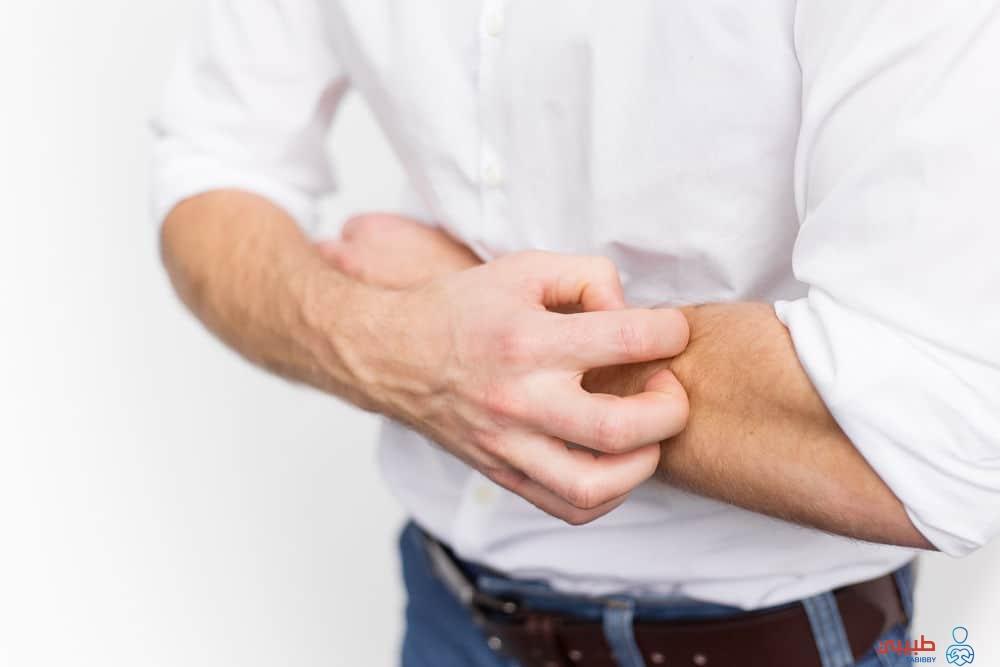 الحكة من أعراض مرض الكبد
