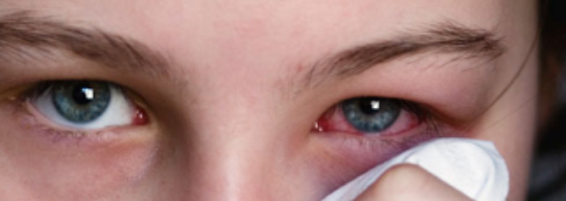 Viral Pink eye