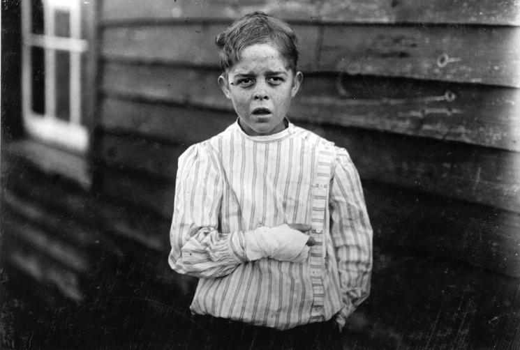 "An injured young mill worker. Giles Edmund Newsom, photographed on October 23, 1912. Giles was injured while working in Sanders Spinning Mill in Bessemer City, North Carolina, on August 21st, 1912. A piece of machinery fell on his foot, mashing his toe. This caused him to fall onto a spinning machine and his hand went into unprotected gearing, crushing and tearing out two fingers. He told the investigating attorney that he was 11 years old when it happened. He and his younger brother worked in the mill several months before the accident. Their father, R.L. Newsom, tried to compromise with the company when he found the boy would receive the money and not the parents. Their mother tried to blame the boys for getting jobs on their own, but she let them work several months. Their aunt said ""Now he's jes got to where he could be of some help to his ma, an' then this happens and he can't never work no more like he oughter."""