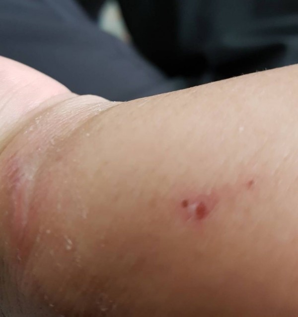 bullet graze injury