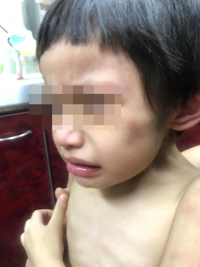 boy's face showing bruises on face and upper body.