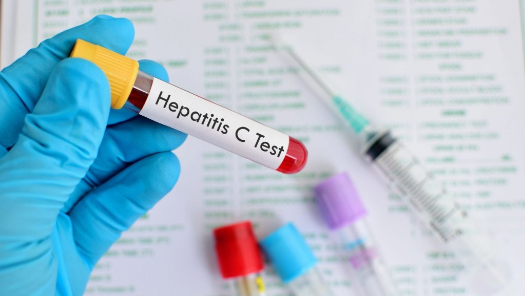 Identifying and Properly Treating Hepatitis C Are Keys to a Cure