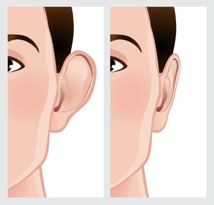 رسومات قبل و بعد تصغير الاذن
